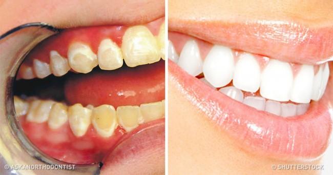 Ce alimente trebuie să mâncăm pentru a ne menține dinții sănătoși și albi
