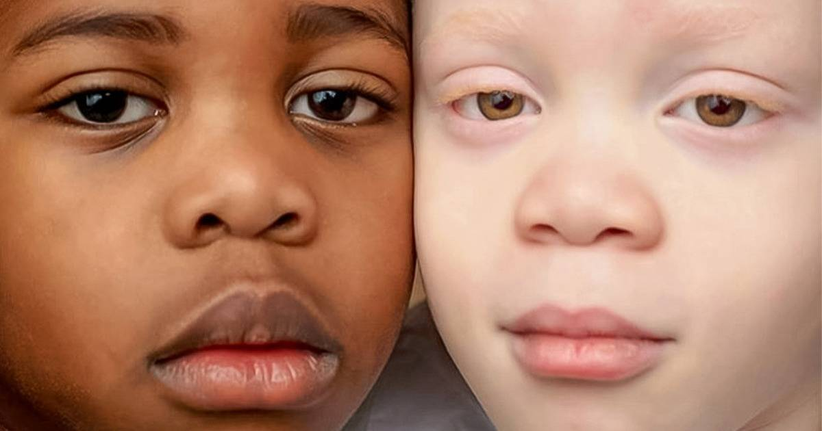 Gemenii care au culori diferite ale piele și-au uimit mama când s-au născut